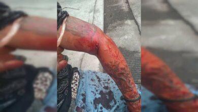 Hombre sufre atentado a balazos en el centro de Pátzcuaro - Pátzcuaro Noticias