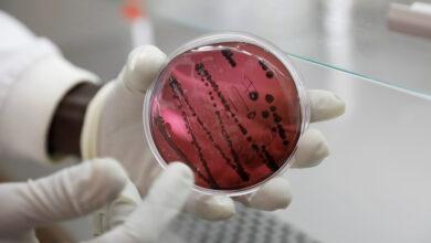 VIRUS CHAPARE: Nuevo virus letal similar al Ébola